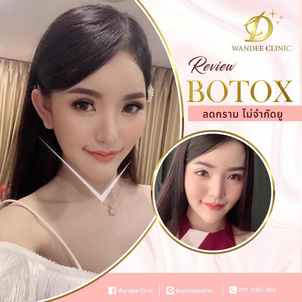 รีวิว botox
