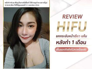 review hifu