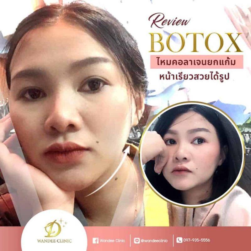 botox reviwe