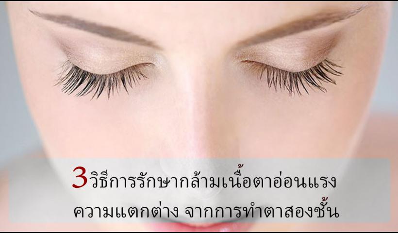 3 วิธีการรักษากล้ามเนื้อตาอ่อนแรง ความแตกต่าง จากการทำตาสองชั้น