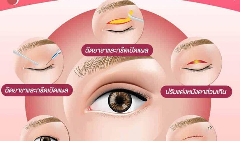 ทำตา 2 ชั้น ยังไงให้สวยสดใส ทุกองศา ศัลยกรรมตา 2 ชั้นขอนแก่น