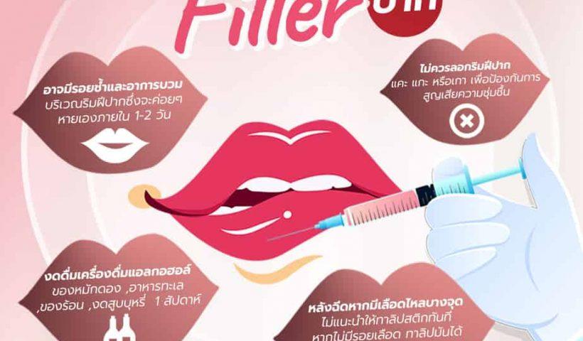4 ข้อปฎิบัติตัวหลังฉีด Filler ปาก ฟิลเลอร์ขอนแก่น
